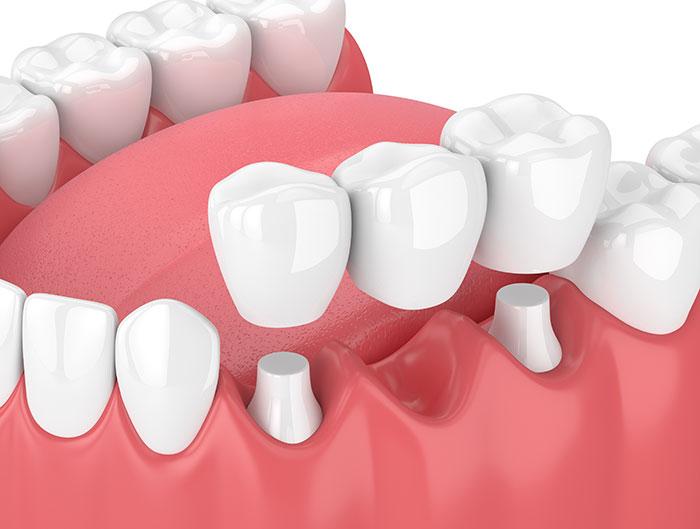 Dental Bridges Bruce Jones Dds