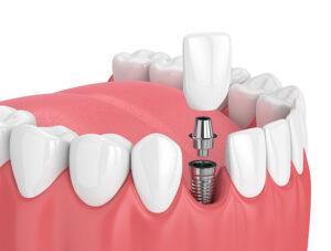 Dental Implants Muskegon Mi