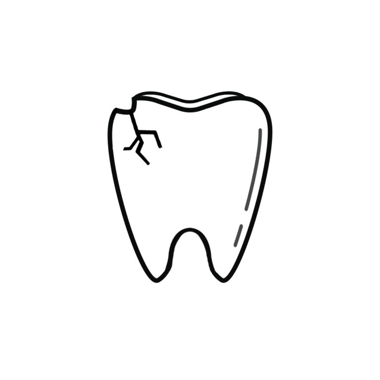 Chipped Tooth Dentist Muskegon Mi